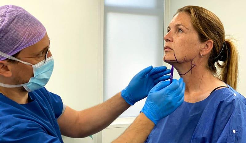 halslift behandeling, halslift ervaringen, necktite ervaring, halslift zonder operatie