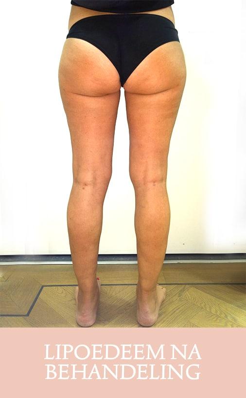 lipoedeem, lipoedeem behandeling, cellulite behandeling, lipoedeem resultaat, lipoedeem na