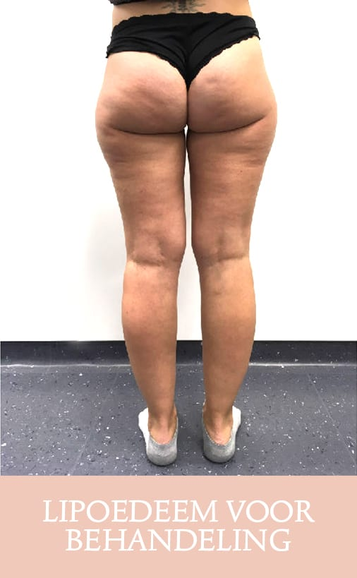 lipoedeem, lipoedeem behandeling, cellulite behandeling, lipoedeem resultaat, lipoedeem voor