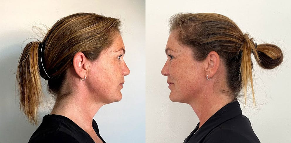 necktite voor en na behandeling, necktite voor na, halslift voor en na, resculpt clinic, halslift ervaring