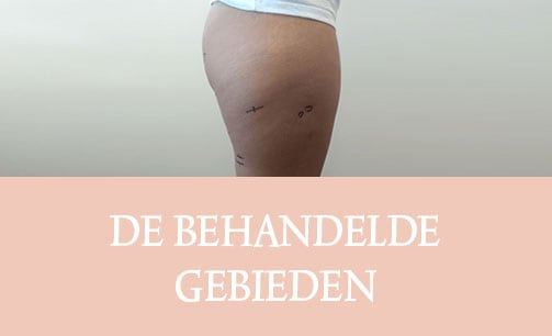cellulite, cellfina, cellulite behandeling, resculpt clinic, cellulite resultaten
