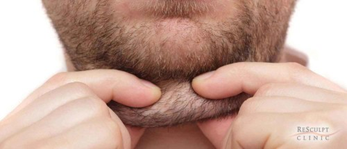 borstverkleining, kleinere borsten, borsten kleiner