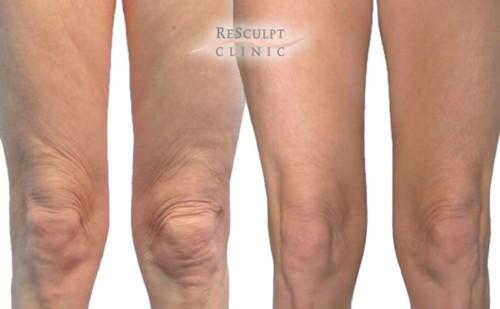 bodytite behandeling, benen vet weghalen, benen voor en na behandeling, resculpt clinic