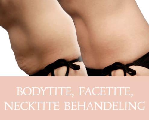 bodytite, facetite, necktite, bodytite behadeling, facetite behandeling, necktite behandeling