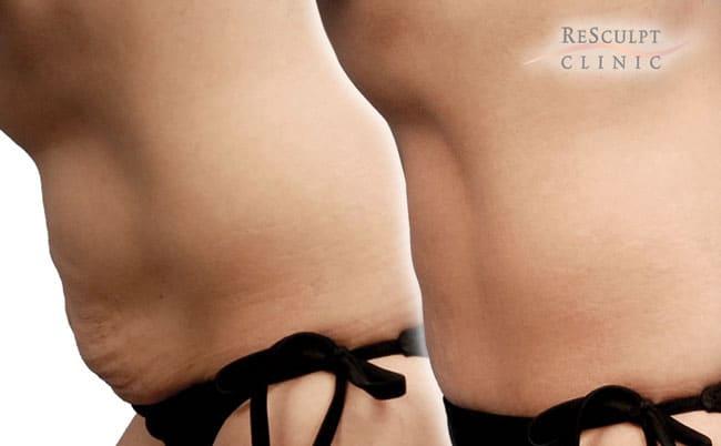 Bodytite behandeling, bodytite, buik verstrakken, huid verstrakken, ver verwijderen zonder liposuctie zonder