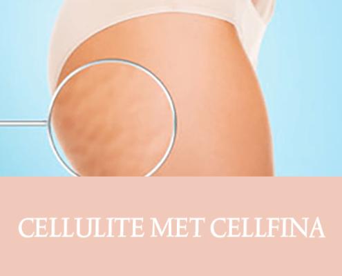 cellulite, cellfina, resculpt clinic, cellulite behandeling, behandeling dermatoloog