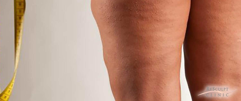 lipoedeem, lipoedeem behandelen, sinasappelhuid, putjes in huid