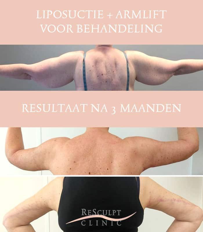 resculpt clinic, liposuctie, armlift, tumescente liposuctie, vet verwijderen, vet armen weg