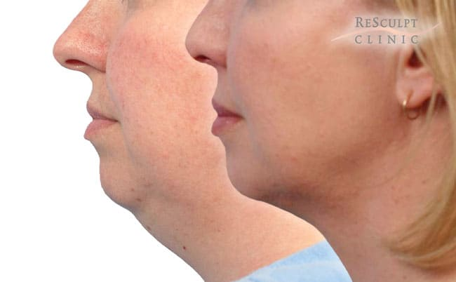 Necktite behandeling, nek opatrakken, nek strakker, nek vet weg laten halen