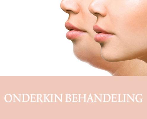 Onderkin behandeling, Belkyra, onderkin laten behandelen, onderkin te dik, resculpt clinic