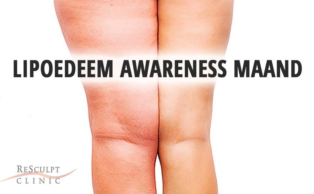 lipoedeem, lipoedeem awareness maand, lipoedeem behandelen, lipoedeem ervaring, ReSculpt Clinic